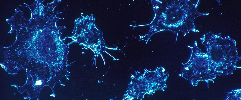 Diferentes tipos de cancer