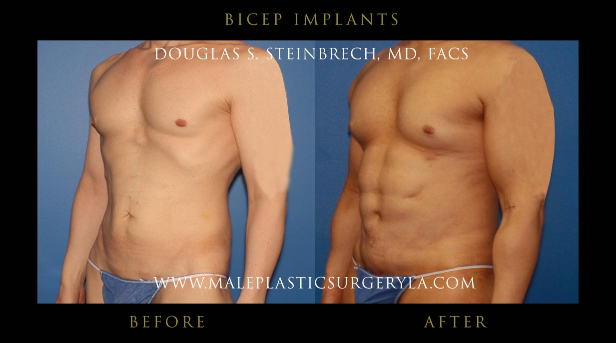 biceps and triceps implants