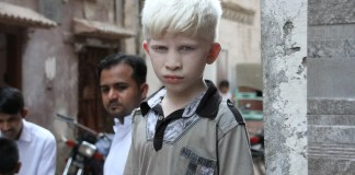 International Albinism Day