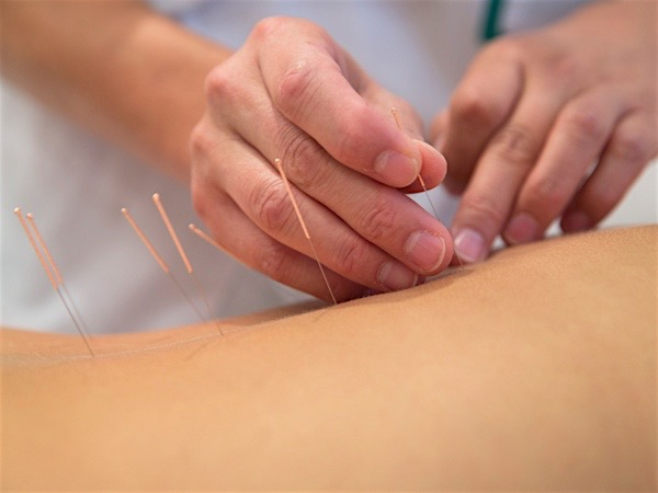 Acupuncture treatment at Mallen Chiropractic in West Palm Beach, FL