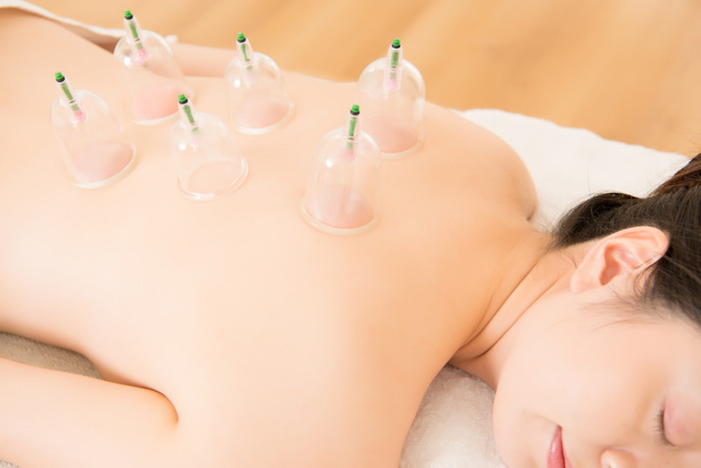 Cupping therapy treatment