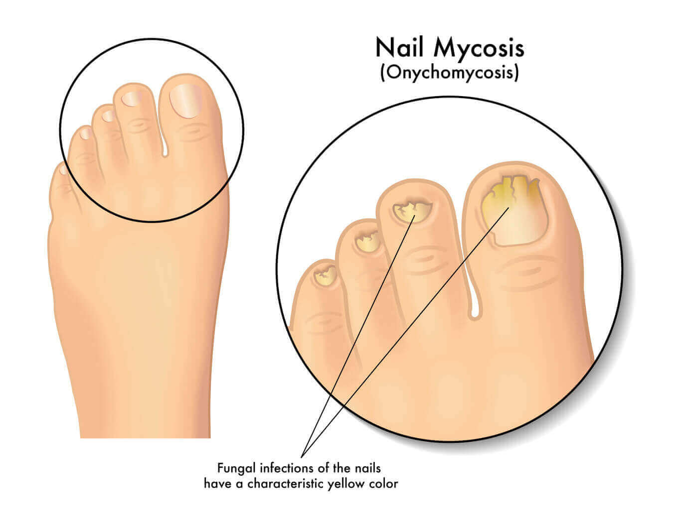 hight resolution of when you cannot wear socks and shoes let the foot breathe and always dry the skin well after washing it