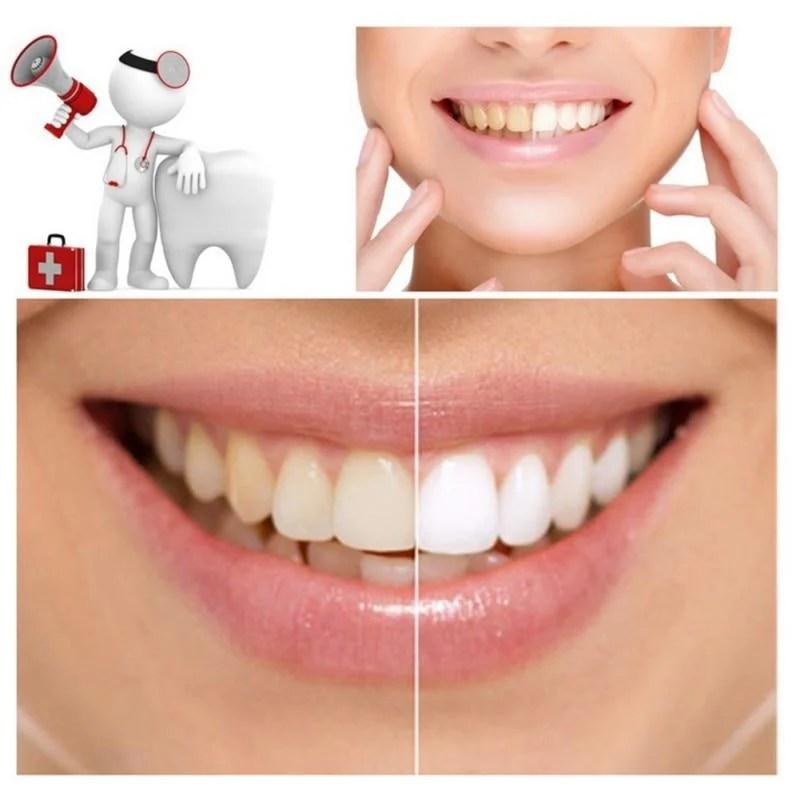 Ativador Dentes Brancos