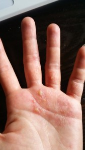 手荒れ 湿疹 ひどい
