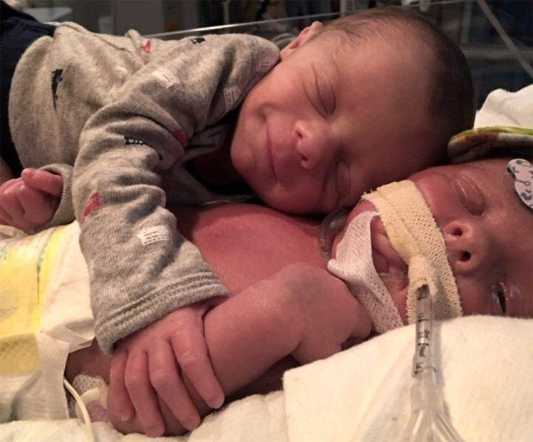 A Baby Twin Saying Final Goodbye to His Brother Will Break Your Heart