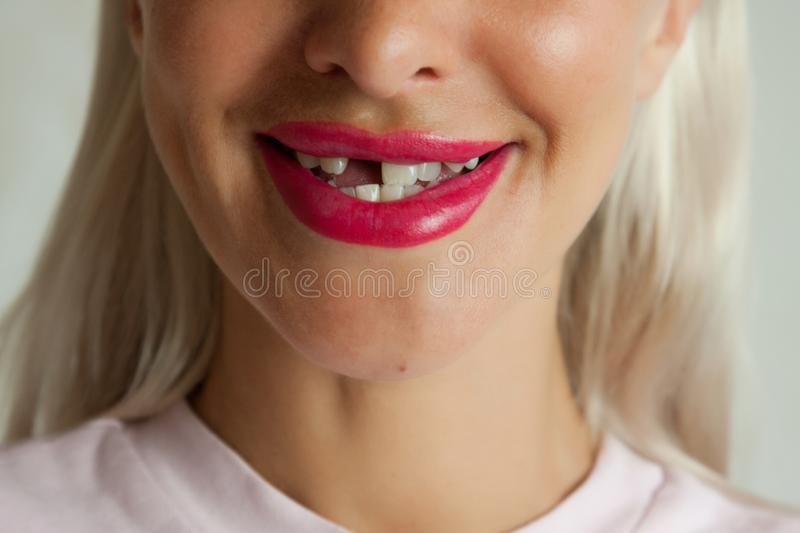 Spitalele dezafectate din România sunt ca dinții cariați ascunși de zâmbetul unei fete frumoase