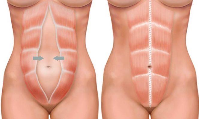 diastase-abdominal