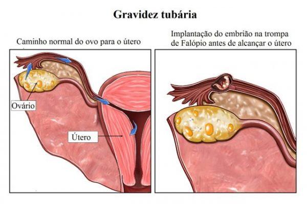 gravidez tubária ou ectópica