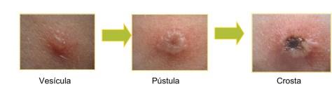 Fases da varicela