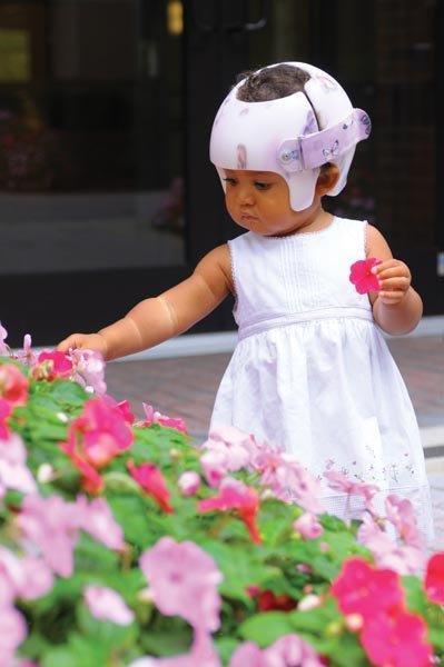 Assimetria Craniana Posicional em Bebês
