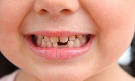 Criança Na Fase de Troca de Dentes?