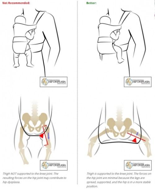 Babywearing hip position