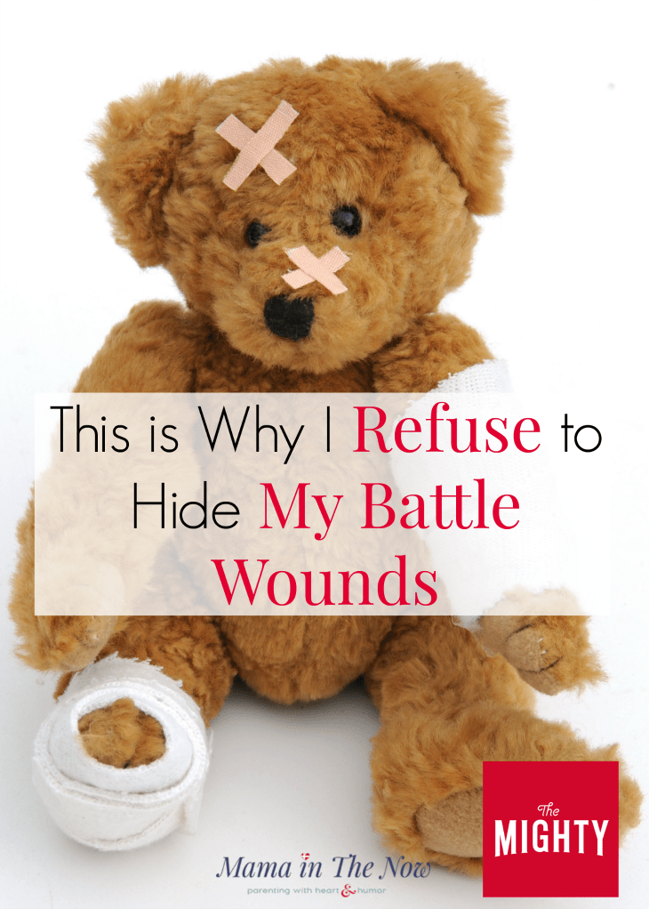 Medical mom writes heartfelt account of the importance of body image, self love and the reasons why NOT to hide scars. Be proud of your scars, they tell your story. Special needs mom. #MedicalMom #SpecialNeeds #SpecialNeedsMom #Thyroid #TheMighty #MamaintheNow