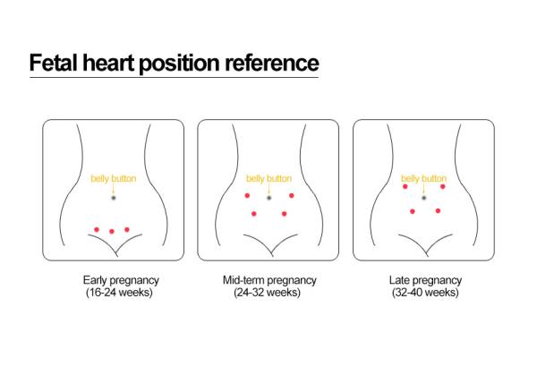 RZ FD-100 skaitmeninis vaisiaus širdies plakimo ritmo detektorius