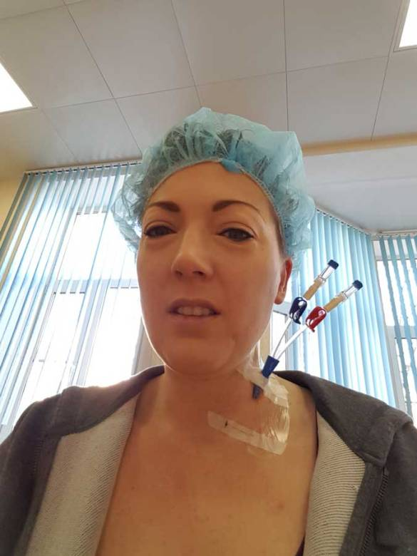 Day minus 8: neckline + fourth day of stem cell stimulation