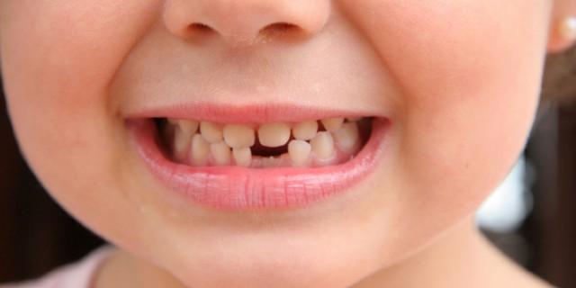 mlijecni-zubi-izbijanje-zubica