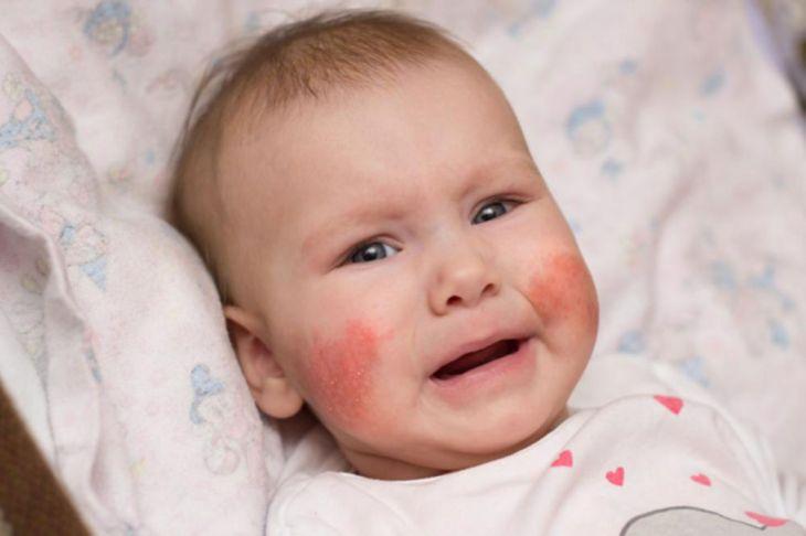 seboreicni dermatitis