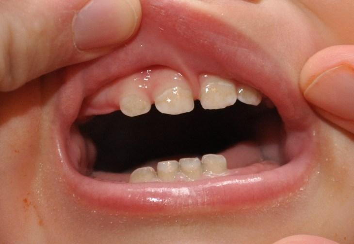 Bijele mrlje na zubima