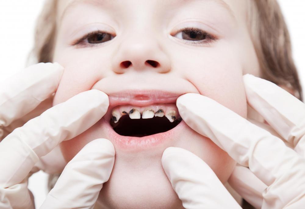 Pokvareni zubi kod djece
