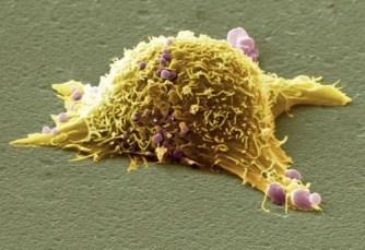 Komórka nowotworowa (pokolorowane zdjęcie spod mikroskopu elektronowego)