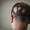 今も多い円形脱毛症の悩み・症状と治療法