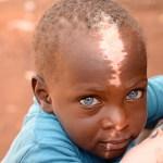 Atteint du Syndrome de Waardenburg, Shakul bénéficie d'une aide inattendue