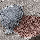 破壊と再生を繰り返す破骨細胞・骨芽細胞