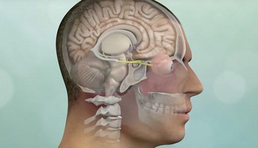 【閲覧注意】脳腫瘍は頭蓋骨に穴を開けてから取り出すのが一番!!