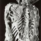 【画像】進行性骨化性線維異形成症(FOP)の患者の方々が提供した骨格画像