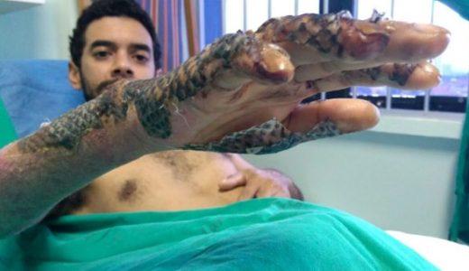 火傷患者の皮膚に魚の皮を貼り付けることで治癒を促進してみた