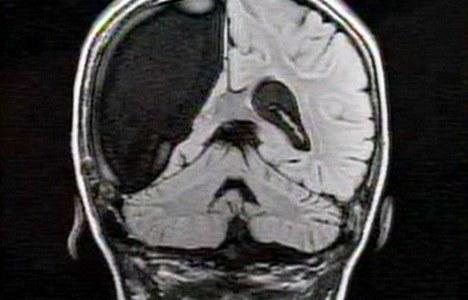 【Q&A】大脳半球(大脳の半分)を切除するとどうなる?