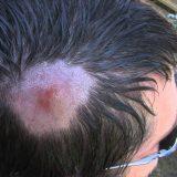 【閲覧注意】頭に寄生したヒツジバエの幼虫を除去する様子を撮影してみた