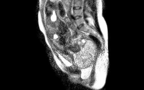 人間の赤ちゃんが生まれる様子をMRIで撮影してみた