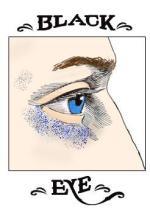 眼瞼下垂症手術後の出血は防ぐことが出来るのか?