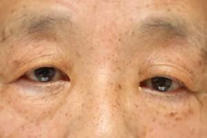 眼瞼下垂術前