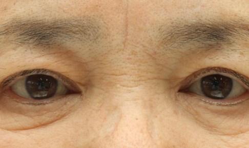 眼瞼下垂症術後の写真