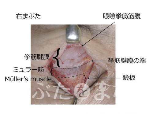 眼瞼下垂の時の写真。ミュラー筋を示す写真