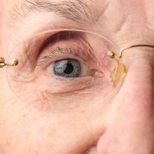 目の上の窪みはなぜ起こる?