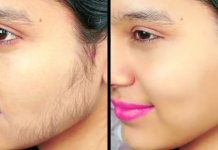 women how to remove unwanted hair permanently