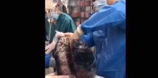 Shocking Video Shows Lungs Blackened After Decades Of Smoking