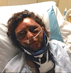 Kelly Papleo suffered broken bones and underwent brain surgery following an attack inside her apartment in April.