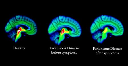 Hope for Parkinson's as scientists spot signs of the cruel disorder in the brain - The Mandatory Training Group UK -