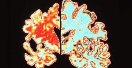 Lack of deep sleep and more day time naps linked to Alzheimer's - MTG UK
