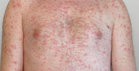 Warning to parents as measles cases reported to PHE break record - MTG UK -