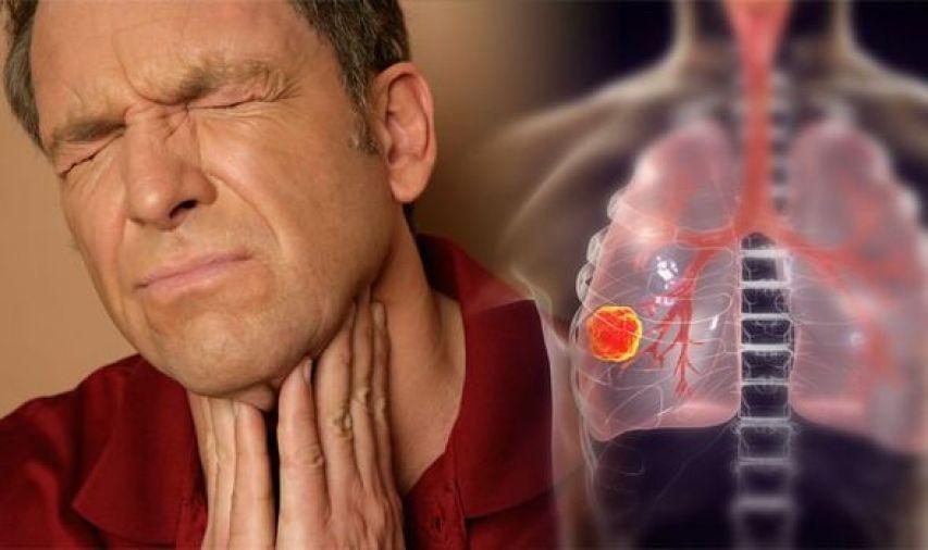 Lung cancer symptoms - MTG UK