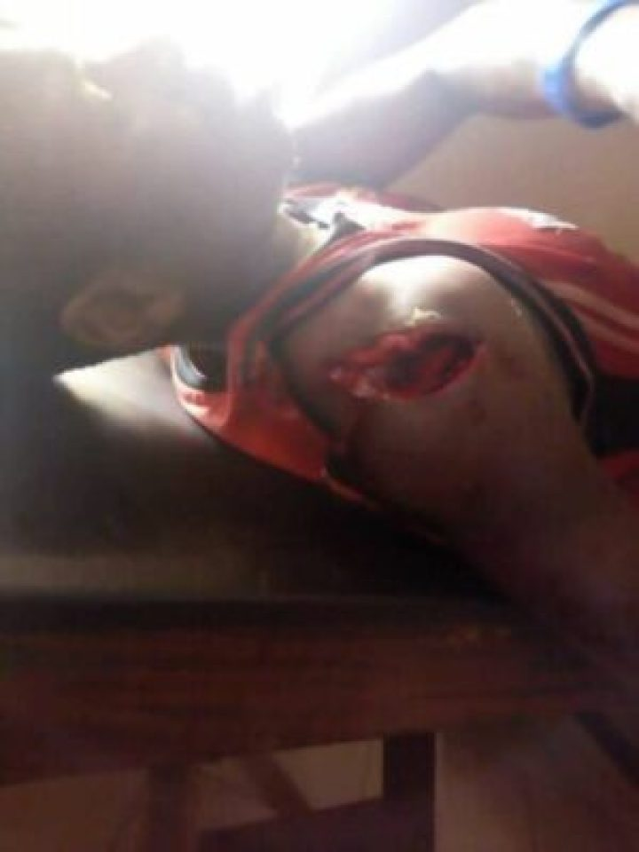 19510680_1442190295819026_8973004828972501473_n Fulani Herdsmen Hacked And Killed A Young Innocent Man Today At Uromi (Photo)