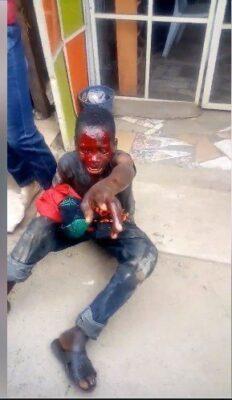 8715978 capture2 jpeg72528766582dfff47d3117d82567eba3307703715 - Boy Caught Stealing Female Underwear. Left Bloodied (Photos)
