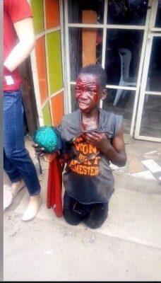 8715979 capture3 jpeg4480c4b52c001b14a641722f3e658923684193235 - Boy Caught Stealing Female Underwear. Left Bloodied (Photos)