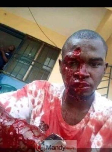 D2V9oEEXQAA03xF #KanoRerun: More Graphic Photos Of Violence In Kano Re-Run Election