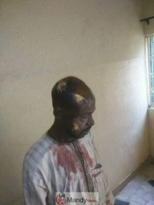 D2VBS2iWkAAA14G 1 - #KanoRerun: More Graphic Photos Of Violence In Kano Re-Run Election